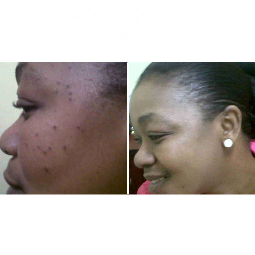 Glutathione Nano Patch before and after photo