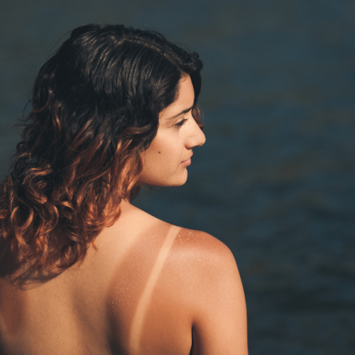 lady with tan lines on her back